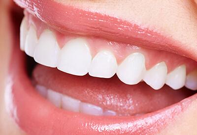 【STEP06】仮歯の装着